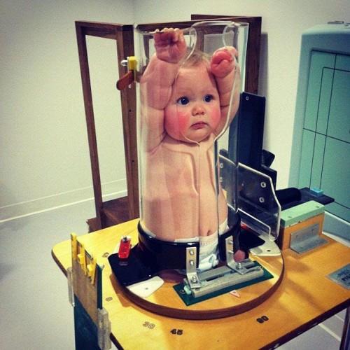 kudikiu-rentgenas (1)